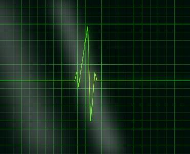 Interpretação de eletrocardiograma é tema de palestra da Escola de Saúde